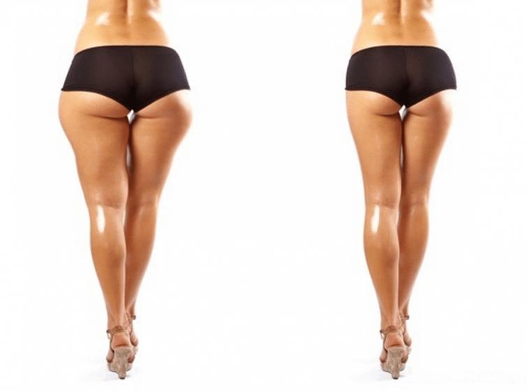 maigrir fessiers cuisses rapidement