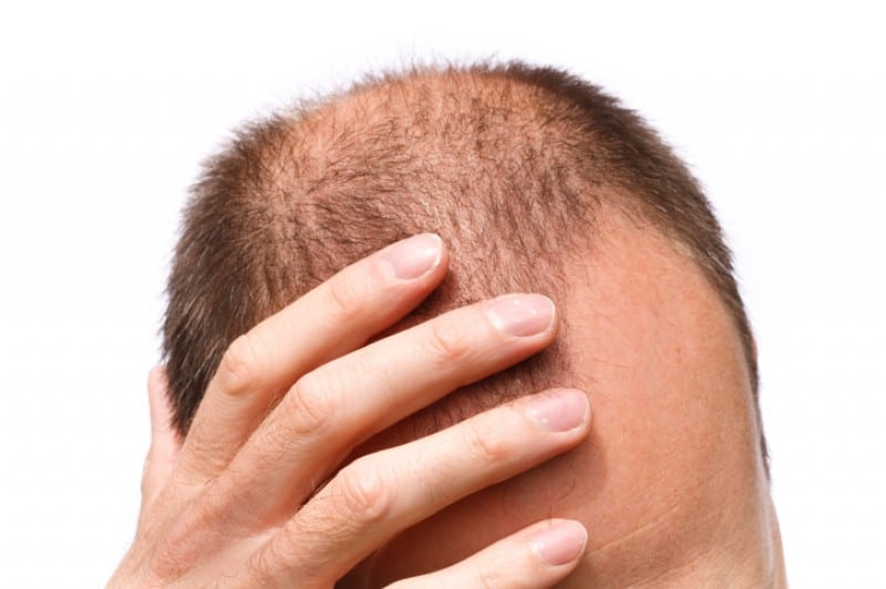 contre la chute de cheveux